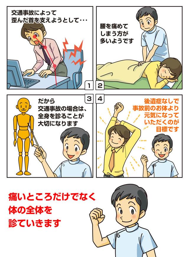 マンガで説明・腰の痛み・腰椎捻挫